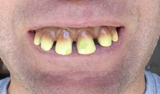 redneck teeth